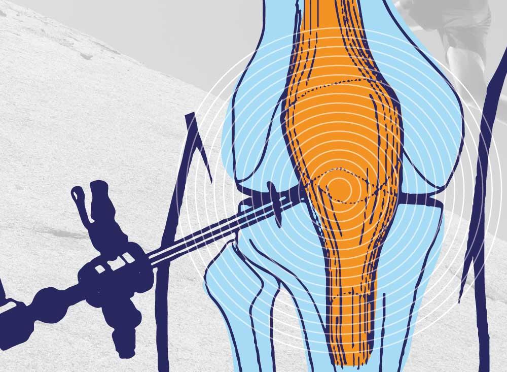 idrima-kalaitzidis-knee-problems